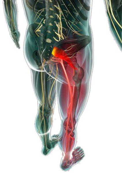 Síndrome piramidal - ABT Fisioterapia